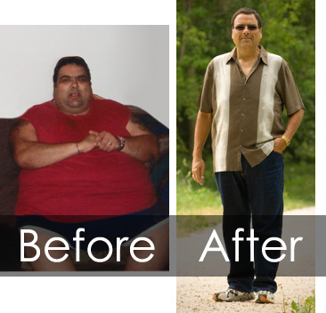wls_weight-loss-surgery11