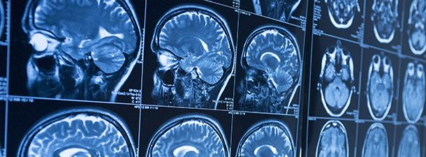Medical Imaging for Cancer Care